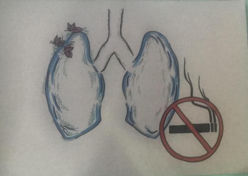 fumat 1